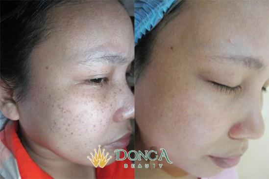 Kết quả trị nám của chị Bùi Thị Hương Giang