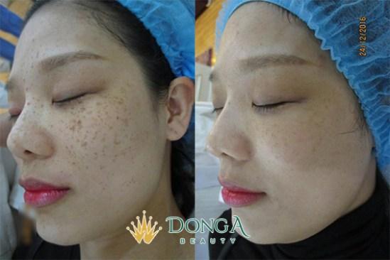 Kết quả trị nám của chị Dương Thị Hương