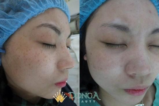 Kết quả trị nám của chị Trần Lan Trinh
