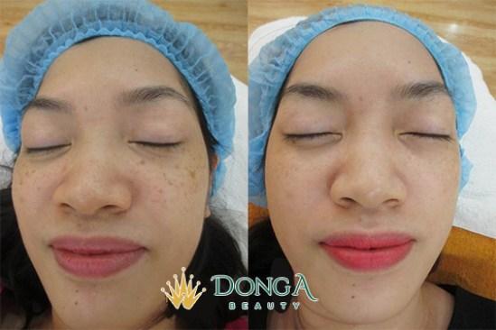 Kết quả trị nám của chị Nguyễn Thị Thu Thủy