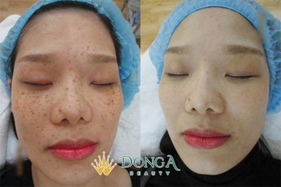 Kết quả trị nám của chị Trần Thị Kim Nguyệt