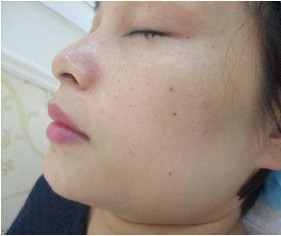 Tình trạng da sau điều trị nám 7 ngày
