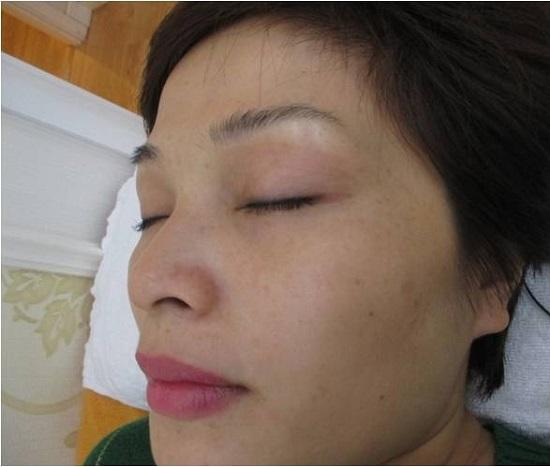 Tình trạng da sau điều trị nám 14 ngày