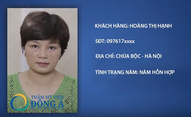 Câu chuyện trị khỏi nám da của chị Hoàng Thị Hạnh