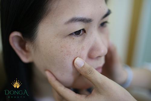 """""""Tự tin mặt mộc sau khi điều trị nám"""" – Câu chuyện của nữ giám đốc Lê Thu Hương"""