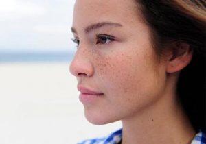 Tâm sự: Bật mí phương pháp trị nám da mặt hiệu quả nhất