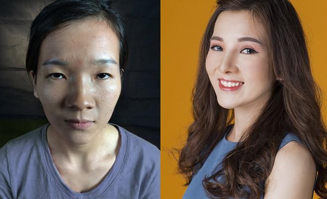 5 ca phẫu thuật thẩm mỹ đại thành công của Việt Nam năm 2017