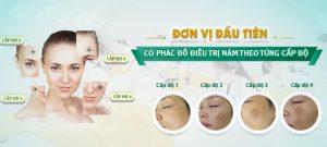 Đánh giá hiệu quả của từng phương pháp trị nám da