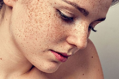 Da mặt dễ bị nám khi bạn đã có tiền sử bị tàn nhang
