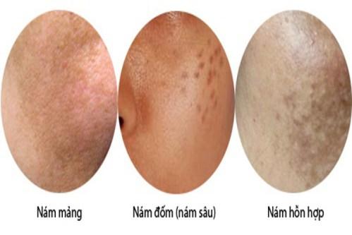3 dấu hiệu bị nám da mặt thường gặp