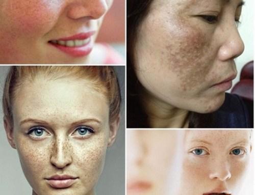 Dấu hiệu da mặt bị nám khi sỉn màu