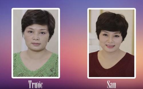 Kết quả điều trị nám theo cấp độ 3 sau 21 ngày của chị Hạnh