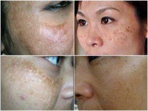 Bị nám da mặt điều trị như thế nào? Chị em chia sẻ