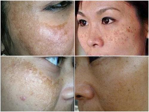 Bị nám da mặt điều trị như thế nào?