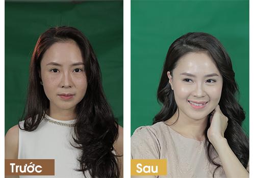 Chị Hương hoàn toàn hài lòng trong suốt hành trình trị nám của mình
