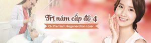 Đặc trị nám cấp độ 4 bằng Premium  Regeneration Laser