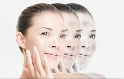 Top 7 cách trị nám da mặt bằng thiên nhiên an toàn tại nhà 11