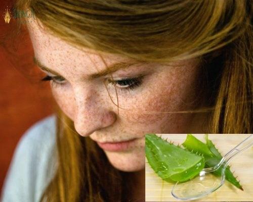 Cách trị nám da mặt bằng thiên nhiên có hiệu quả như mong đợi? 2