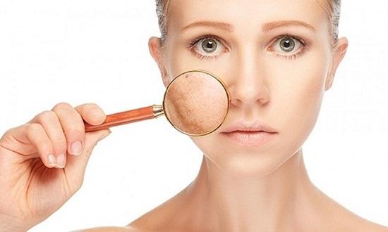 Top 7 cách trị nám da mặt bằng thiên nhiên an toàn tại nhà 10