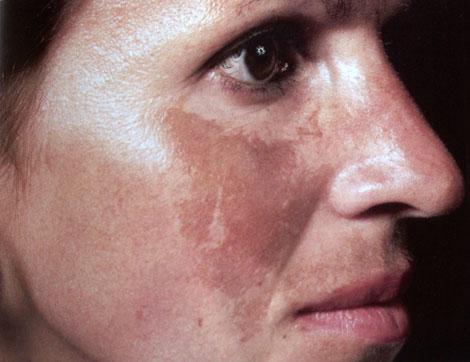 Nám mảng trên gò mà phải của một người phụ nữ