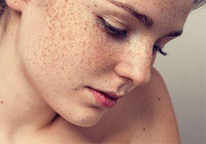 Chuyên gia giải đáp: Có thể điều trị dứt điểm tàn nhang bẩm sinh không?