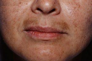 Nguyên nhân và cách trị nám râu an toàn và hiệu quả