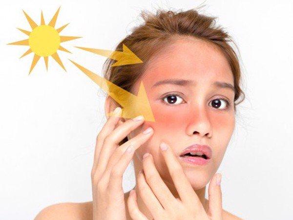 Ánh nắng mặt trời làm nguy cơ bị sạm da cao hơn