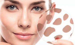 Top 6 cách trị đốm nâu trên mặt đơn giản tại nhà